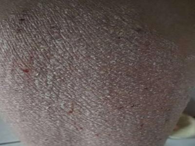 患上牛皮癣皮肤该做什么样的检查